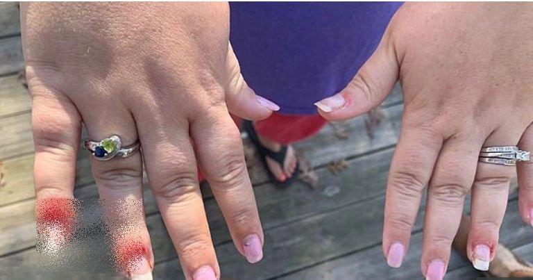 A vrut o manichiură de vis, dar s-a ales cu un coșmar: degete umflate și pline de puroi. Cum arată acum unghiile femeii. IMAGINI șocante!