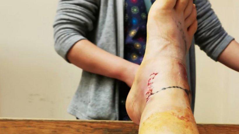 """Pacientă cu piciorul rupt trimisă acasă. """"Am fost întrebată de ce am piercing în arcadă și în piept"""""""
