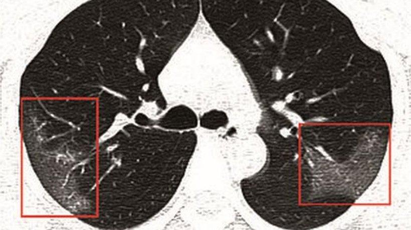 Cum arată radiografia pulmonară a unei tinere cu coronavirus. Medicii, uluiți de viteza cu care virusul înaintează în organism
