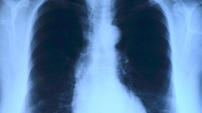 """Cum arată plămânii unui infectat cu COVID-19. Managerul Institutului """"Marius Nasta"""": """"Apare un sindrom complex, care nu poate fi ținut sub control de către medici"""""""