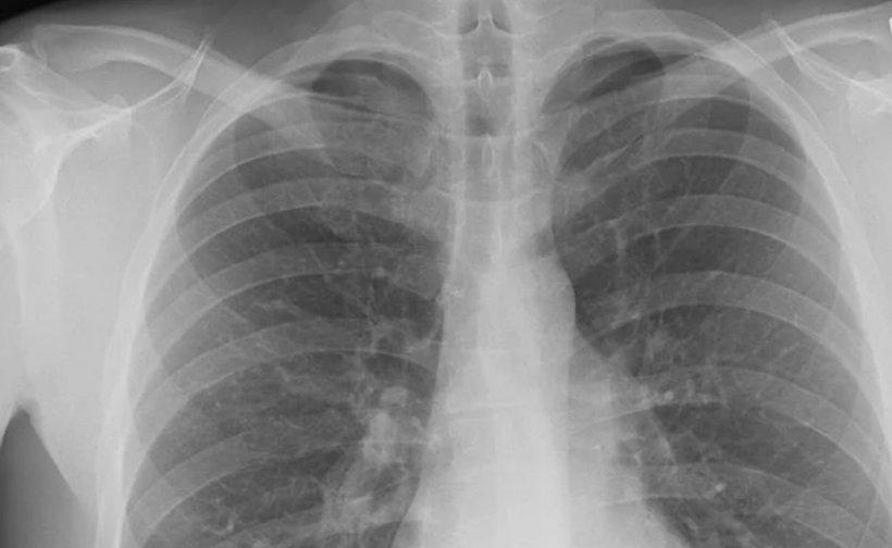 Avertismentul unui pneumolog, despre infectarea populaţiei cu COVID-19