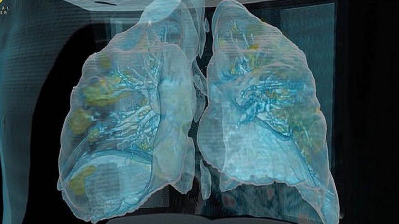 """E uluitor cât de repede pătrunde noul coronavirus în plămânii unui bărbat de 50 de ani. Medic: """"Puteți vedea distrugerea"""""""
