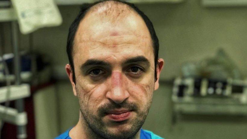 Imaginea unui tânăr asistent după zeci de ore de muncă: obosit și cu semne adânci în față de la masca de protecție