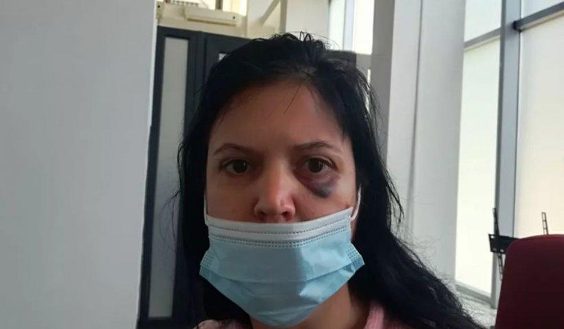 Femeie din Iași, bătută de propriul concubin în fața copilului de trei ani: M-a strâns de gât și m-a lovit, ca să vând apartamentul!
