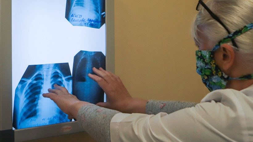 Renumit medic din Cluj, semnal de alarmă: Coronavirusul atacă ambii plămâni. Nu am mai văzut așa ceva niciodată!