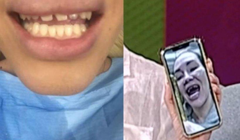 Umilință supremă! O divă din showbiz-ul românesc și-a lipit dinții cu lipici, după ce i-au căzut fațetele. Imagini jenante: a dat stomatologul în judecată