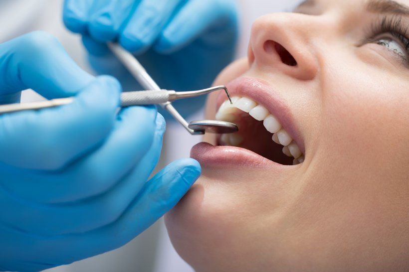 Pentru un zambet mereu frumos apeleaza la o stomatologie profesionala!