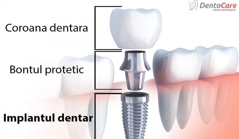 Cea mai bună modalitate de a înlocui un dinte pierdut