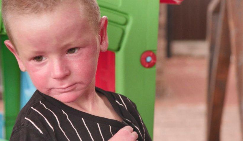 Povestea lui Dominic, copilul care schimbă câte un strat de piele pe zi