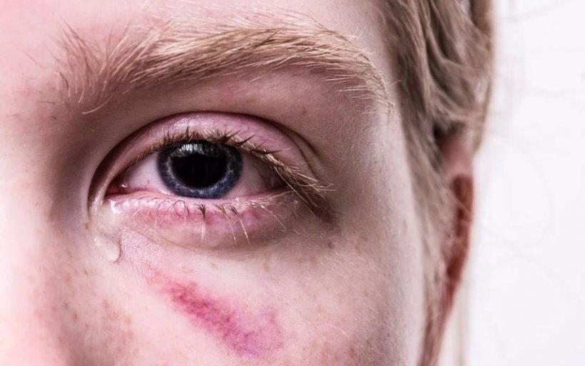 S-a modificat legea privind violenţa domestică: Împăcarea părţilor nu mai înlătură răspunderea penală