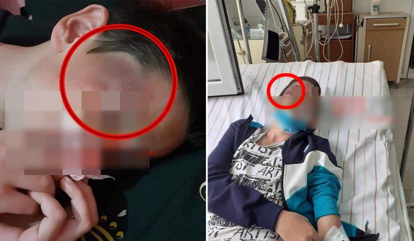 Un copil bătut de tatăl vitreg a fost machiat de mama lui ca rănile să pară mai grave