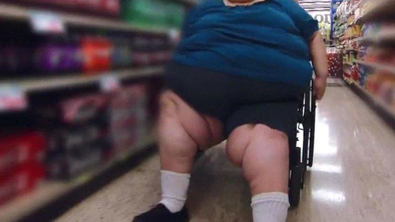 """Boala dureroasă care afectează femeile și e confundată cu obezitatea. Medic: """"Nu putem vorbi de prevenție"""""""