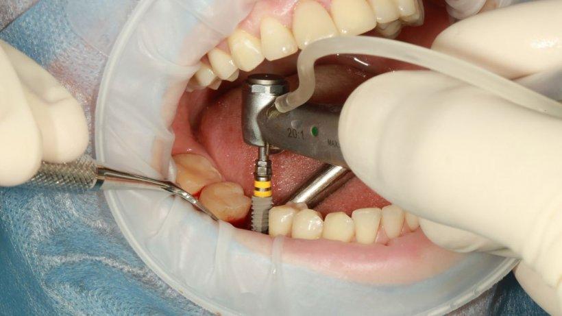 Soluția salvatoare pentru pierderea dinților! Beneficiile și riscurile unui implant dentar