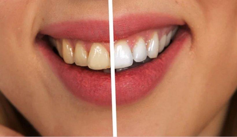 Albirea profesională nu strică dinţii. Dr. Epistatu ne spune cele cinci cauze care ne îngălbenesc dantura