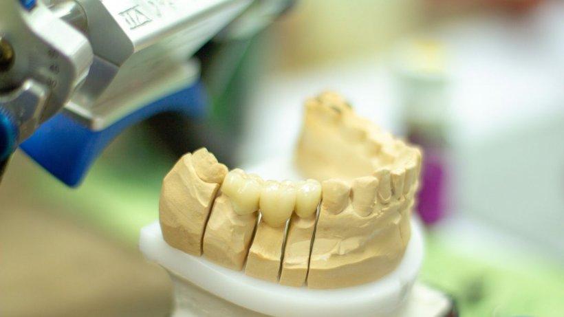 """Victima stomatologilor măcelari rupe tăcerea: """"Nu mai dădeaînapoi infecția, se umflase fața! Mi-a omorât toți nervii la dinții sănătoși!"""""""