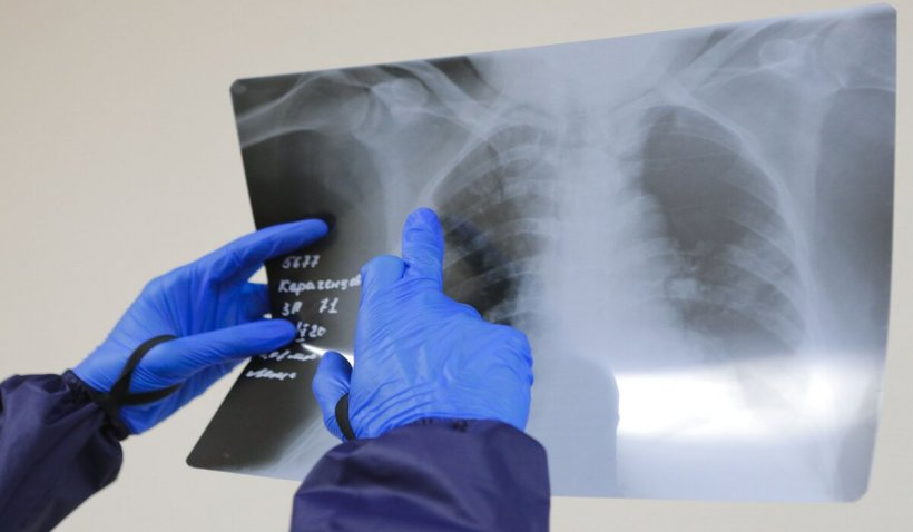 O femeie din Japonia, bolnavă de COVID-19, a primit transplant de plămâni de la donatori recuperaţi de boală