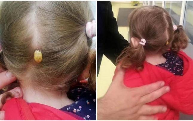 O fetiţă a ajuns la spital cu o căpuşă uriaşă pe cap, după ce s-a jucat într-un parc din Suceava