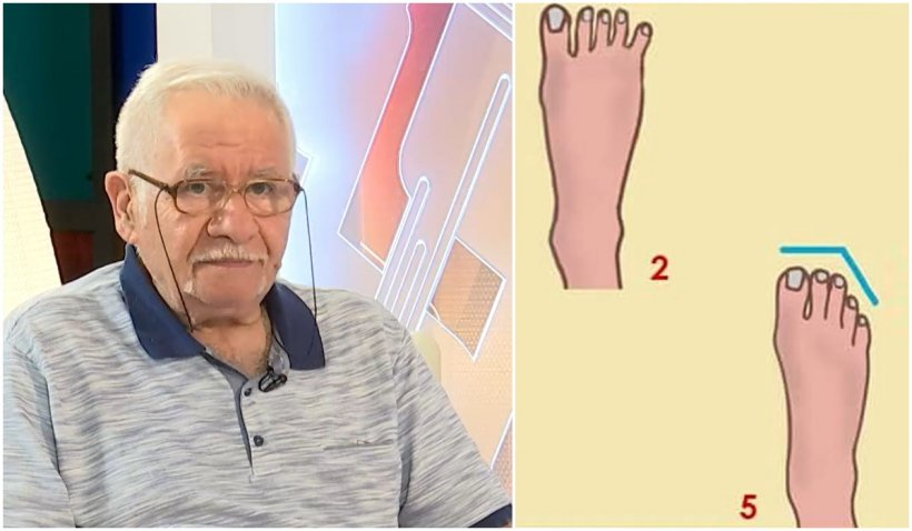 Mihai Voropchievici: Secretul degetelor de la picioare. De cine să fugi cât vezi cu ochii