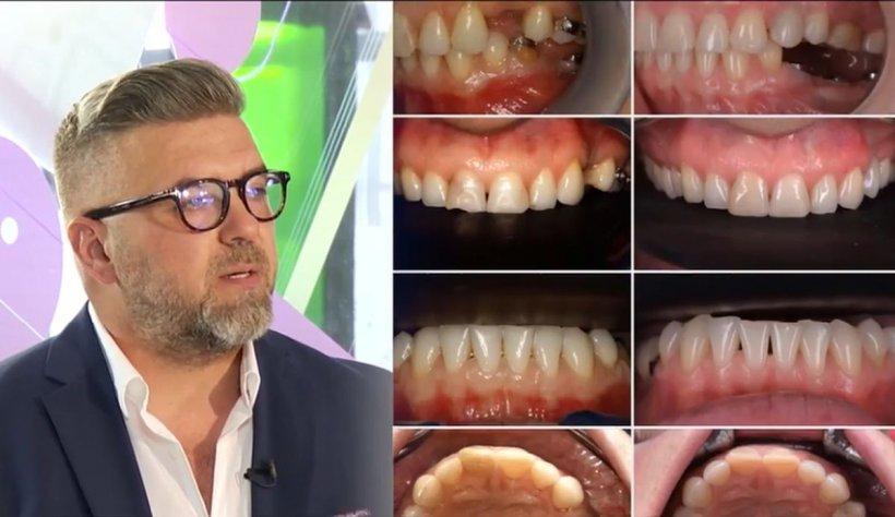"""Câţi medici lucrează la un plande tratament dentar. Dr. Toader: """"Ne trebuie toate aceste informaţii pentru a ajuta pacientul"""""""