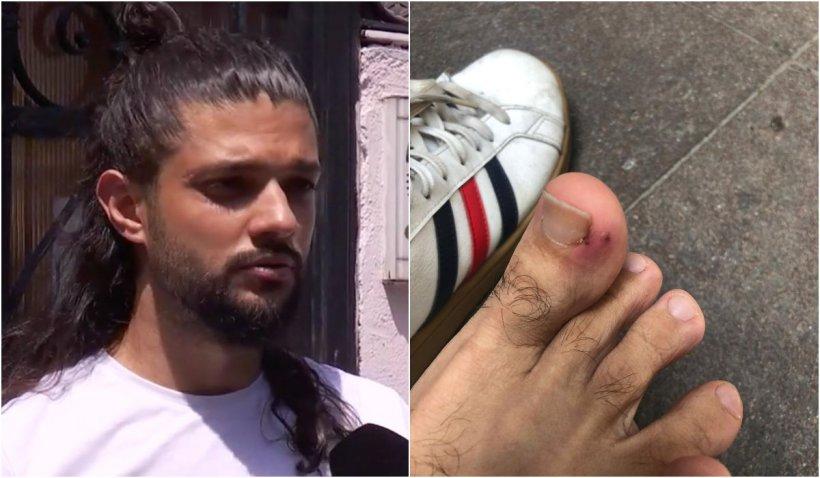 """Cătălin, băiatul mușcat de șobolan în centrul Bucureștiului: """"Am dat cu piciorul în el și nu a avut nicio reacție. Sângeram și m-am dus imediat la Urgențe"""""""
