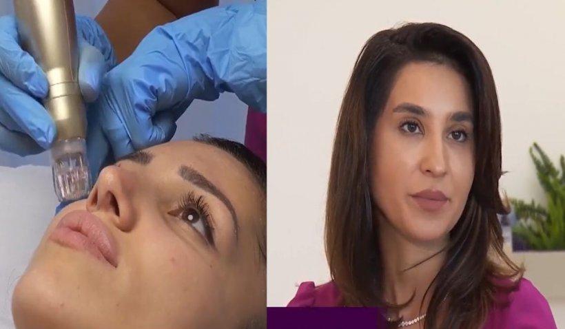 """Tratamentul eficient pentru tenul afectat de cuperoză sau rozacee. Dr. Manciu: """"Nu există reacţii adverse"""""""