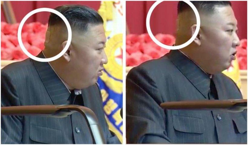 Speculațiile privind problemele de sănătate ale liderului nord-coreean au fost alimentate de ultima sa apariție