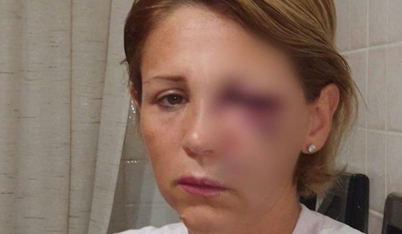 O româncă a fost bătută cu bestialitate într-un magazin din Italia. Niciun cumpărător nu a intervenit pentru a o ajuta