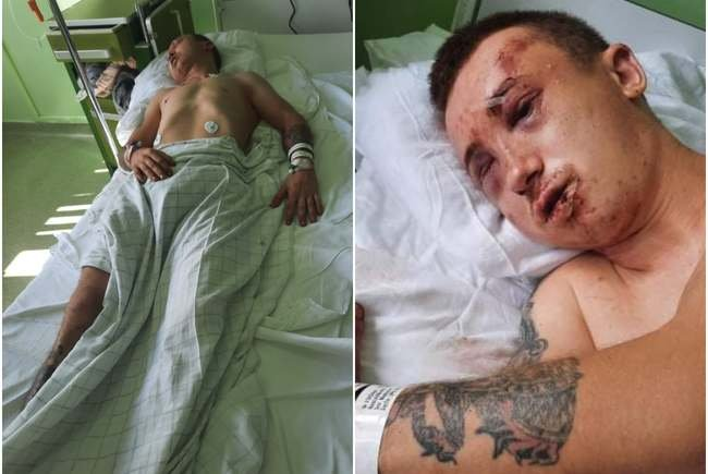 Băiat bătut, dezbrăcat, incendiat și lăsat să moară pe un trotuar, în Arad