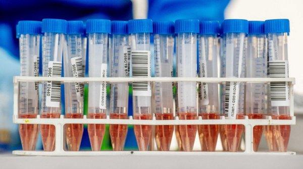 Infectări record! 15 îmbolnăviri la 1,000 de locuitori! Reprezentanții localității spun că nu este nevoie de carantină