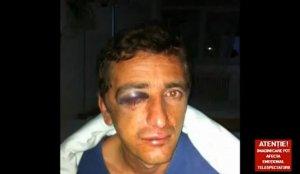 Un bărbat din Caransebeş, bătut cu bestialitate pentru o bucată de pământ