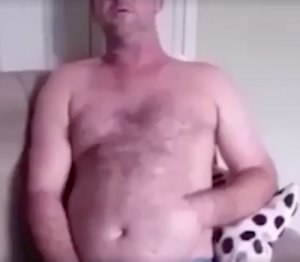 Cum a ajuns acest bărbat cu mâna cusută în stomac! Imagini uluitoare