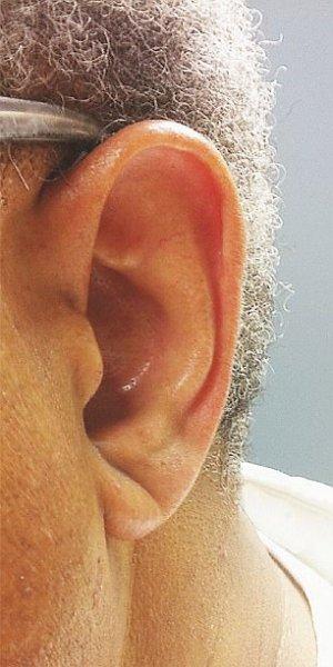 Ai semnul acesta pe lobul urechii? Trebuie să vezi imediat un medic. Viața ta depinde de asta