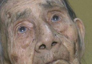 Doctorul a crezut că e o glumă proastă, dar când a văzut ce îi ieșea bătrânei din ochi, în loc de lacrimi, i-a stat inima în loc