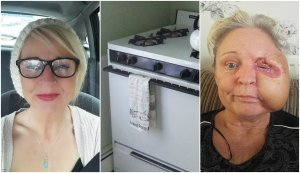 S-a lovit la sprânceană în timp ce gătea în bucătărie, iar după câteva ore fața ei arăta teribil. Medicii i-au pus un diagnostic înfiorător - cu ce se infectase femeia