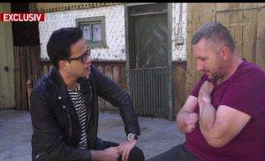 Apel umanitar: Un bărbat din Suceava și-a pierdut mâinile, în urma unui accident de muncă. Își pune toată speranţa în românii cu suflet mare